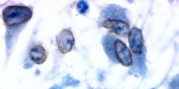 Immunohistochemistry-bg
